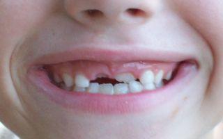 Ребенок кусается в детском саду: советы психолога
